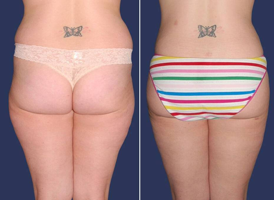 80 Liposuction Before and After Photo