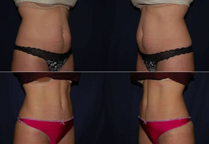 318 Abdominoplasty Before and After Photo