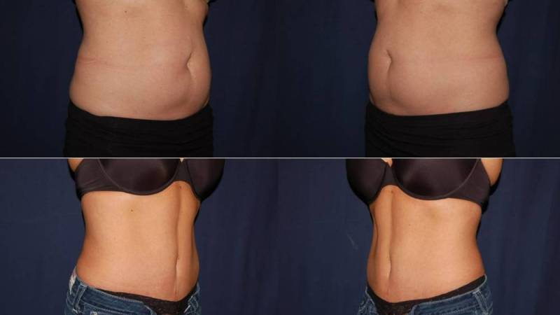 254 Tummy Tuck Before and After Photo
