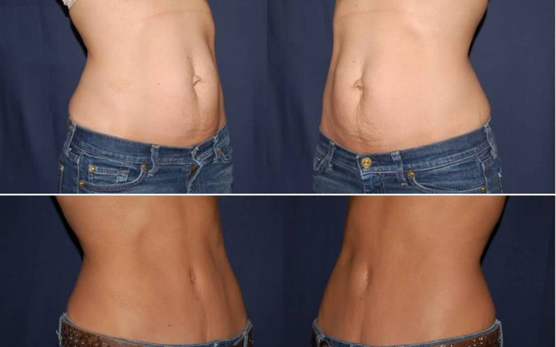 250 Abdominplasty Before and After Photo