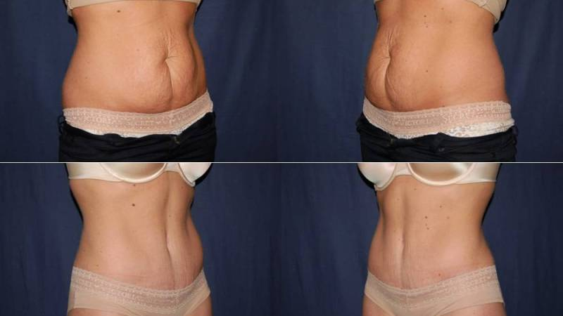 210 Tummy Tuck Before and Aafter