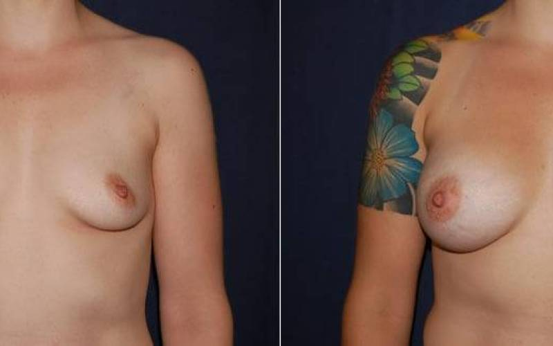 169 Breast Enlargement Before and After Photo