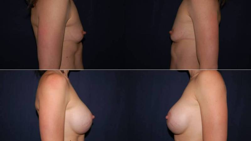 161 Breast Enlargement Before & After Photo