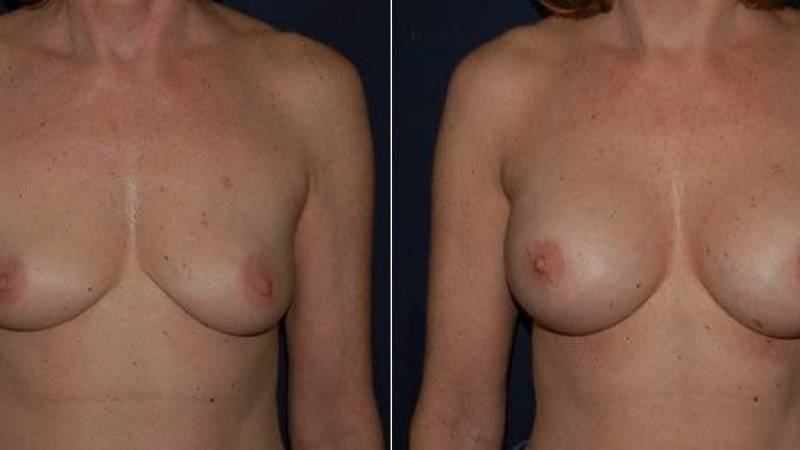 158 Breast Enlargement Before & After Photo