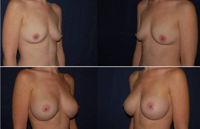 148 Breast Enlargement Before & After Photo