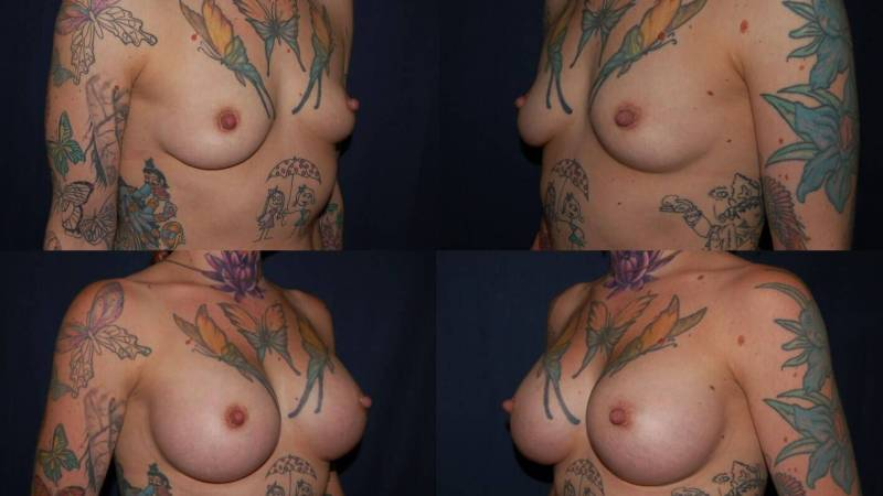 143 Breast Enlargement Before & After Photo