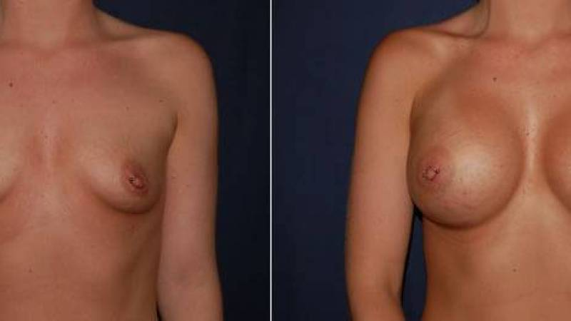 141 Breast Enlargement Before & After Photo