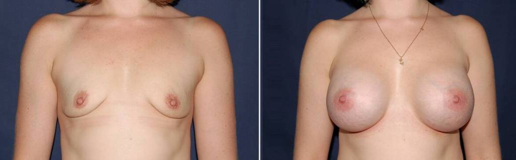 135 Breast Enlargement Before & After Photo