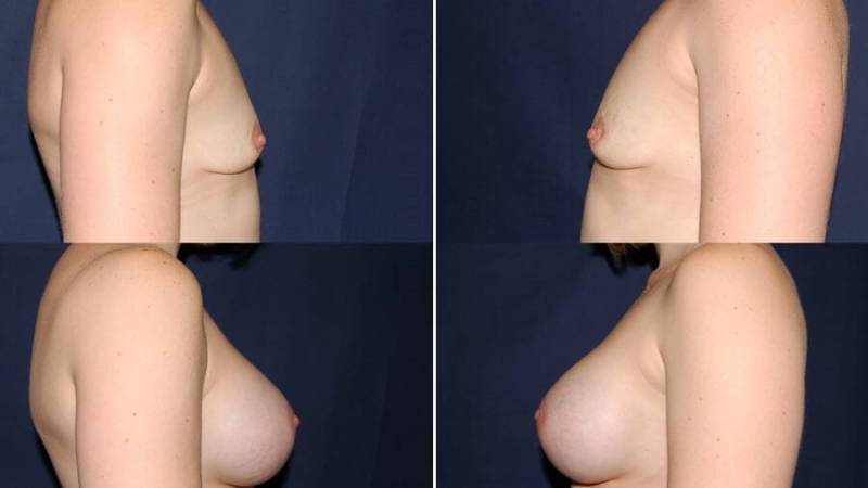 134 Breast Enlargement Before & After Photo