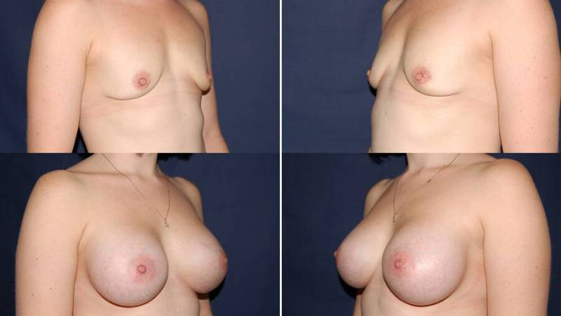 133 Breast Enlargement Before & After Photo