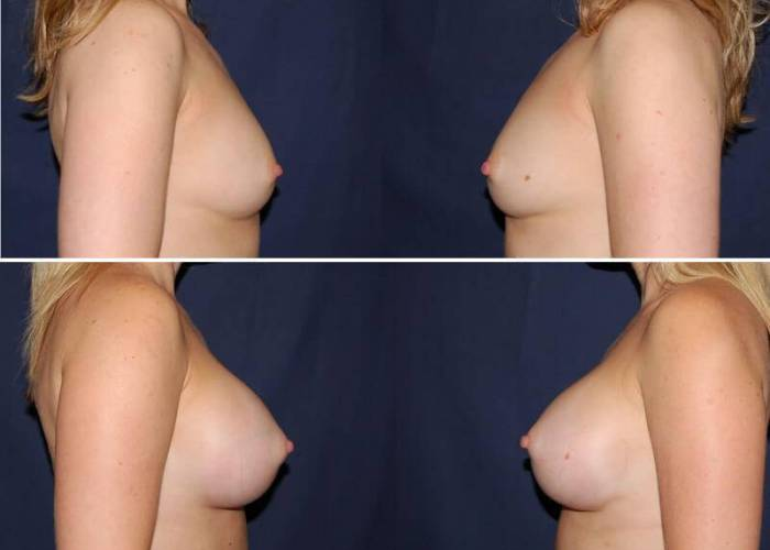 124 Breast Enlargement Before & After Photo