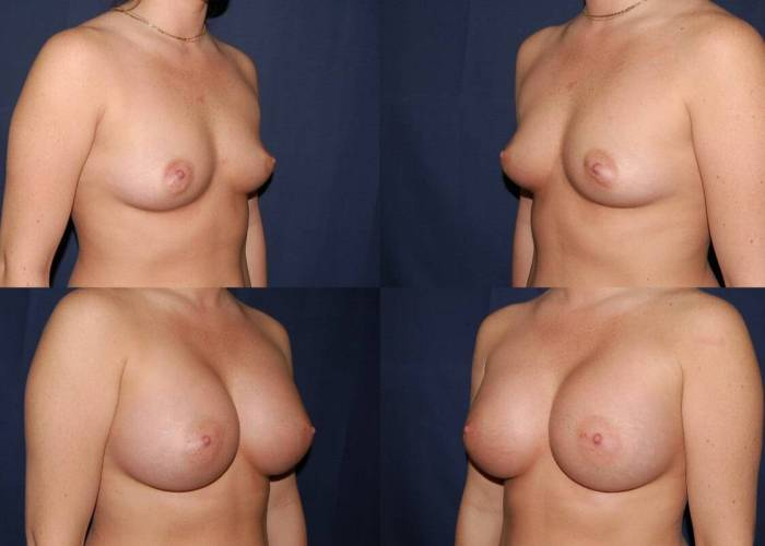 121 Breast Enlargement Before & After Photo