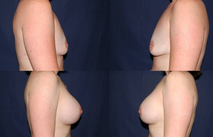 119 Breast Enlargement Before & After Photo