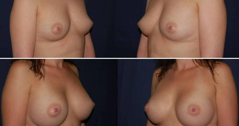187 Breast Augmentation Before and After Photo