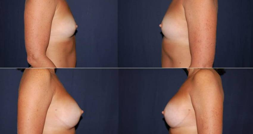 179 Breast Augmentation Before and After Photo