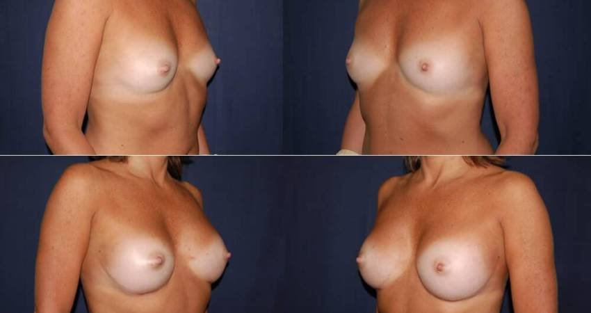 178 Breast Augmentation Before and After Photo