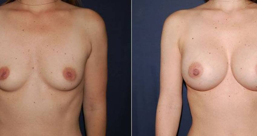 177 Breast Augmentation Before and After Photo