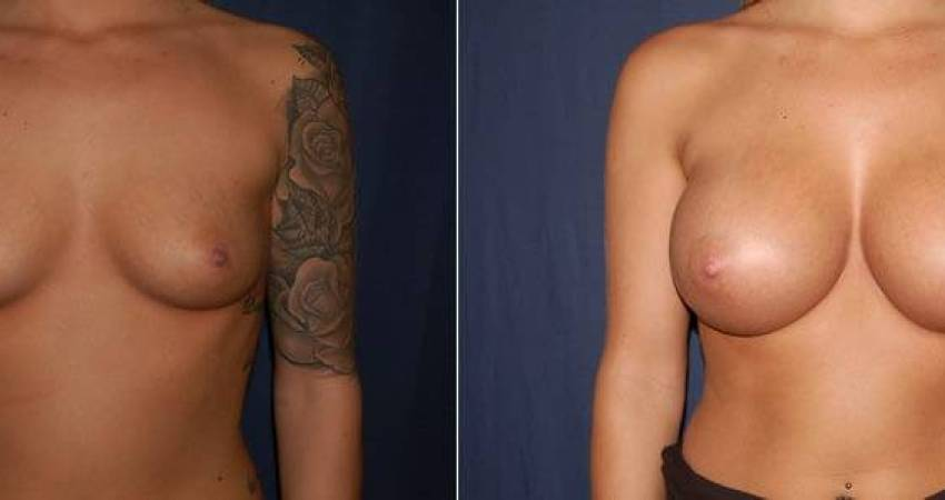 174 Breast Augmentation Before and After Photo