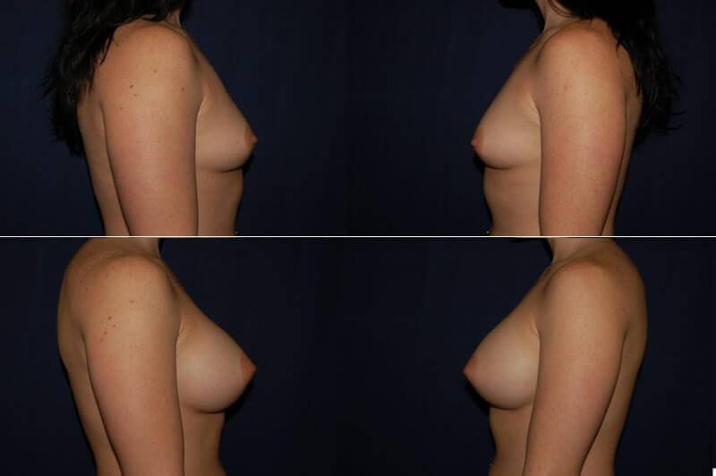 353 Breast Augmentation Before and After