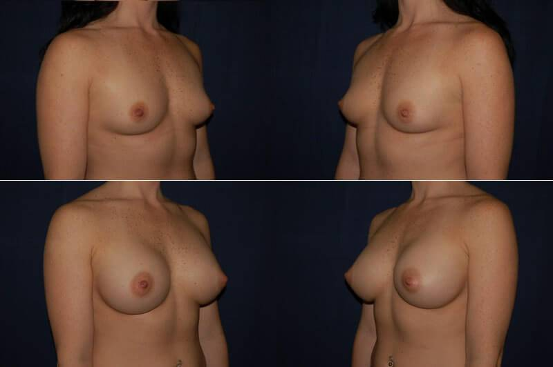 352 Breast Enlargement Before and After