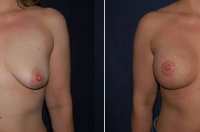 69 Breast Lift with Implants