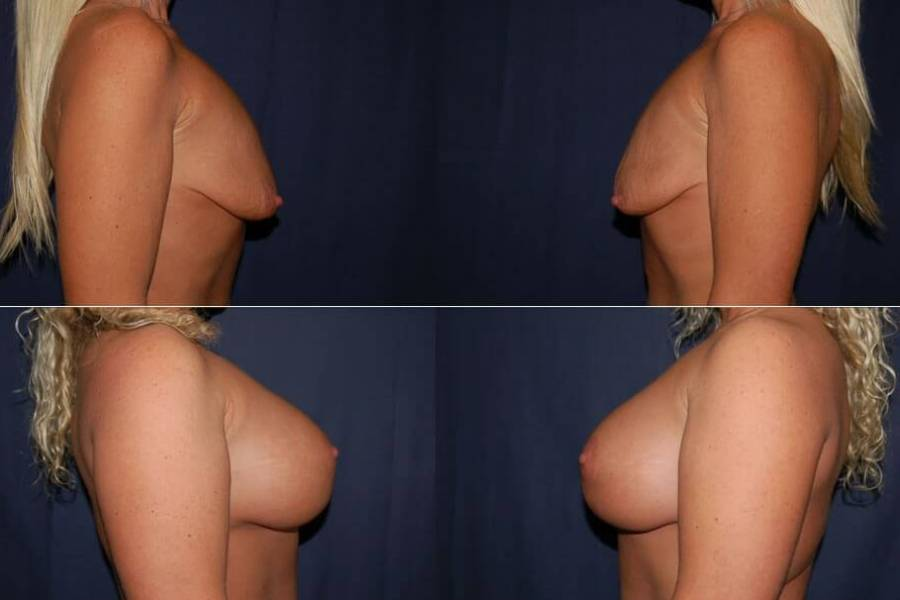 41 Breast Lift with Implant
