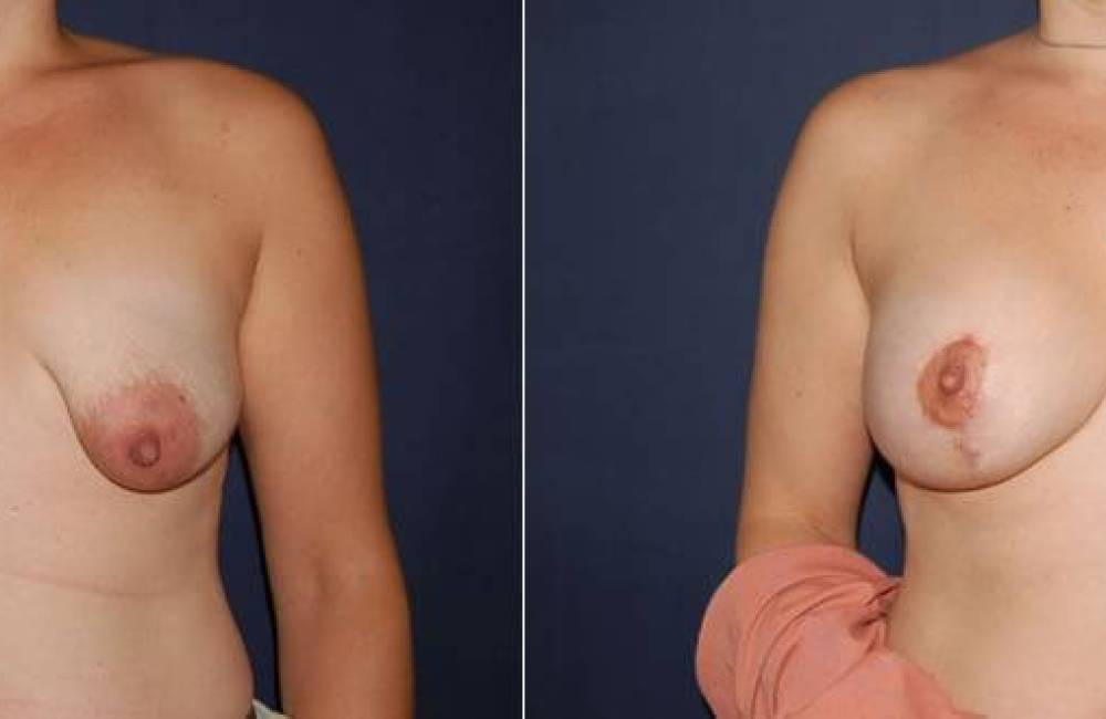 39 Breast Lift with Implants