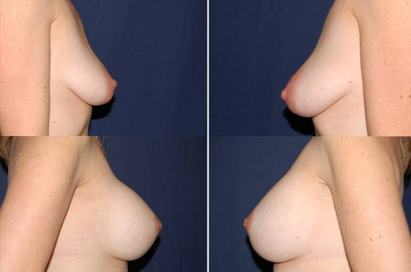 32 Breast augmentation and Mastopexy