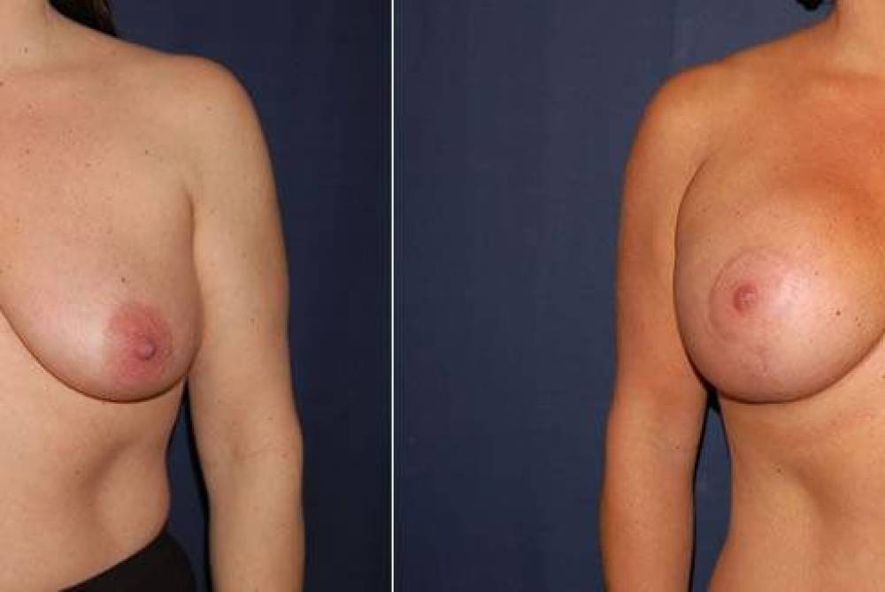 62 Breast Lift with Implants