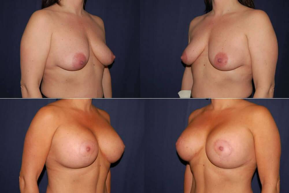 60 Breast Lift with Implants