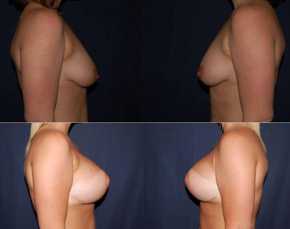 58 Before and After Breast Implants