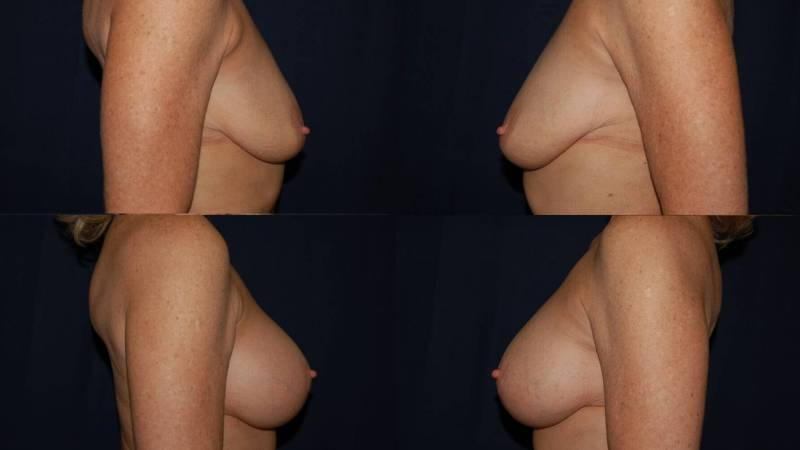 56 Breast Lift with Implants