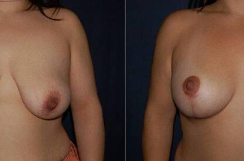 45 Breast Lift with Implants