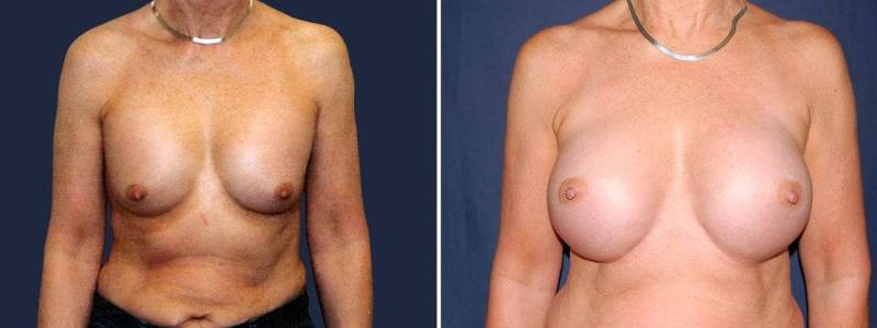 104 Secondary Breast Implants Before and After Photo