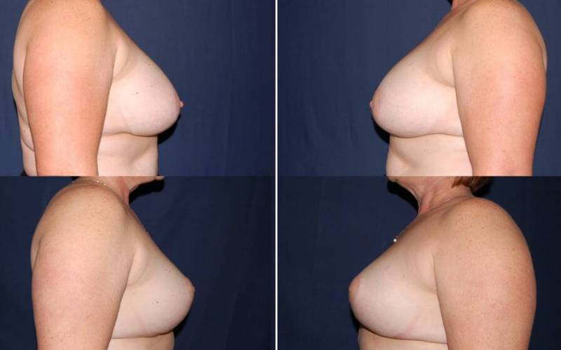 101 Secondary Breast Procedure Before and After Photo
