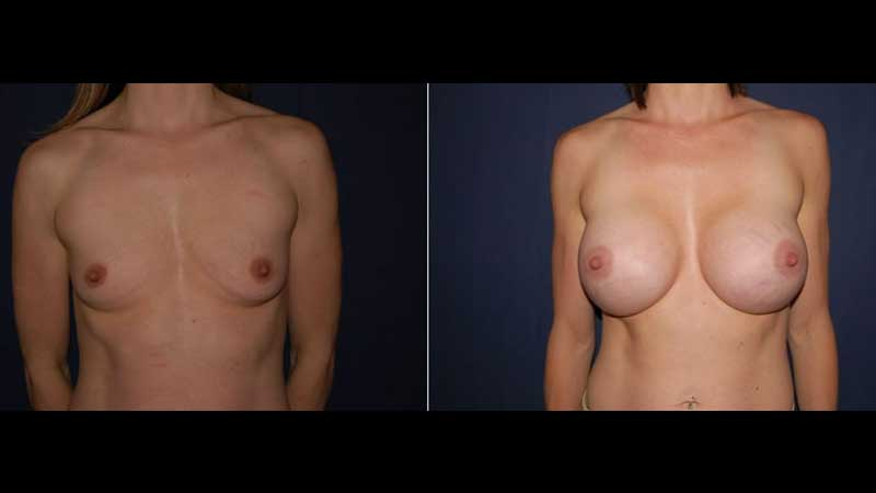 Breast Enlargement photo 26