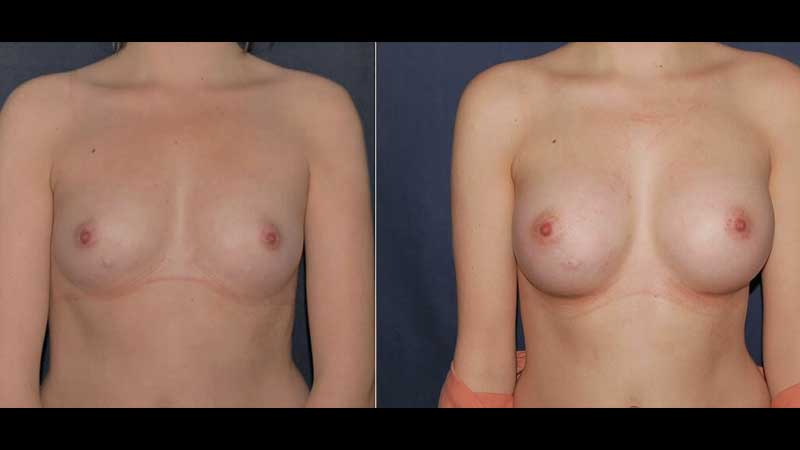 Breast Enlargement Surgery Photo 25