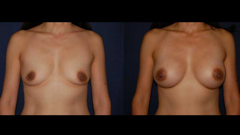 Breast Augmentation Results 23
