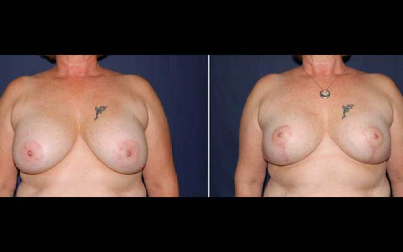Secondary Breast Suguery before and after breast aug 17
