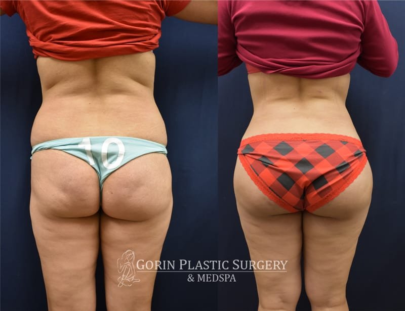 Brazilian butt lift 12