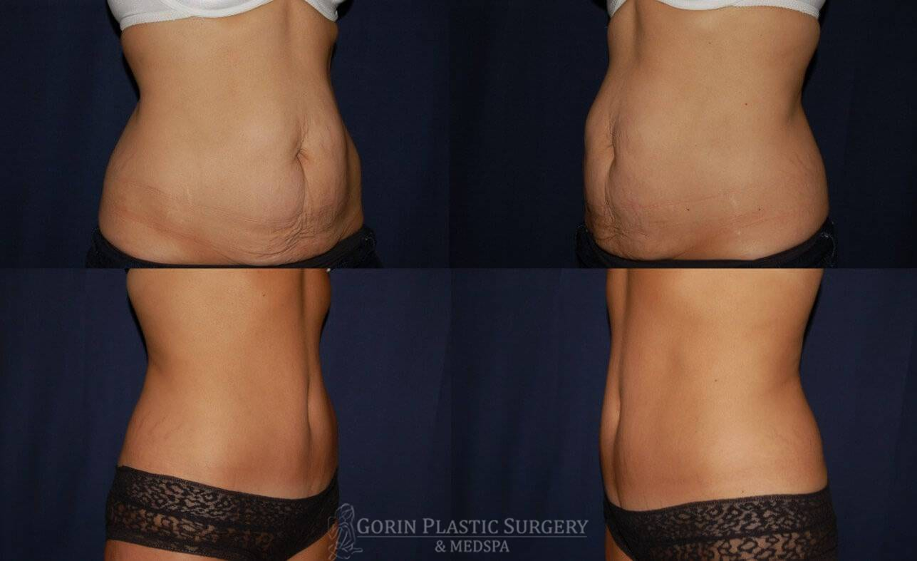 Tummy tuck before and after 18