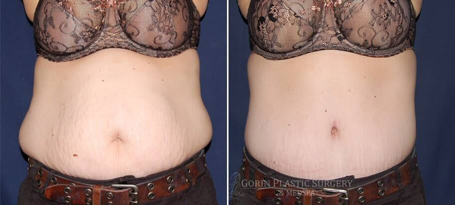 Tummy tuck before and after 17