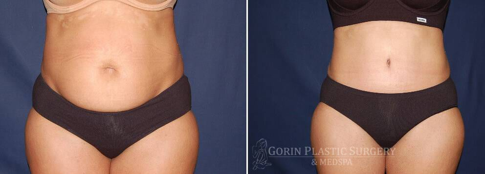 Tummy tuck before and after 7