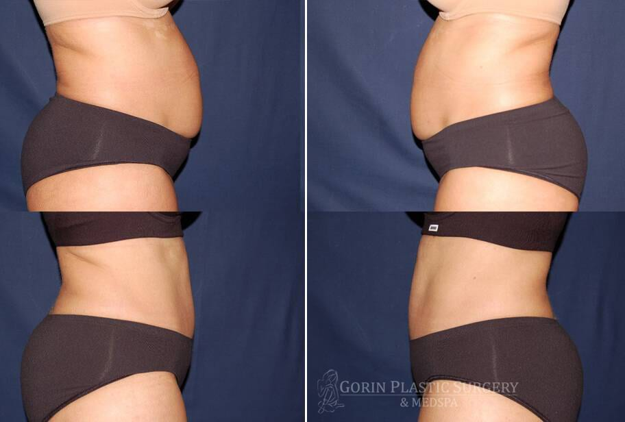 Tummy tuck before and after 6