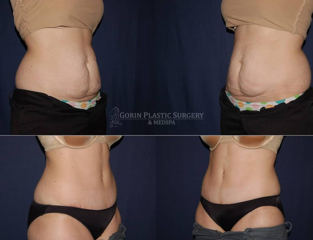 Tummy tuck before and after 58