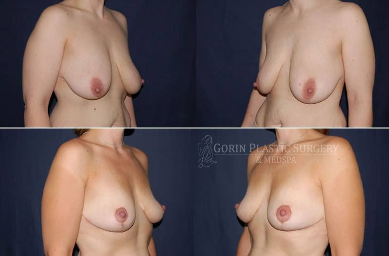 breast lift with augmentation before and after oblique view 12