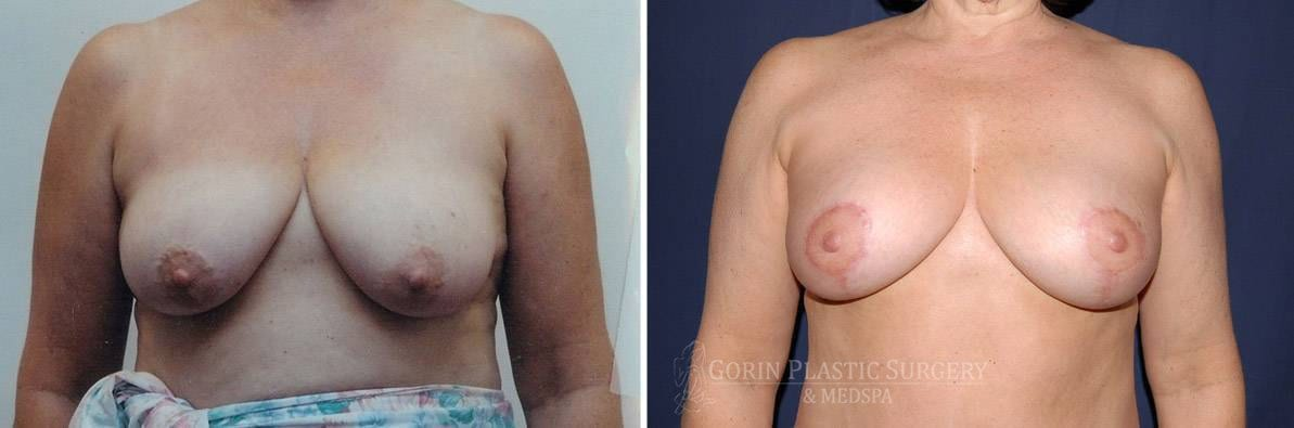 breast lift with augmentation before and after front view 20