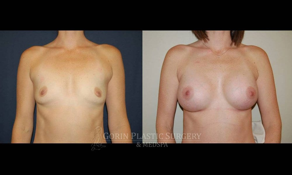 Breast augmentation before and after front view 71