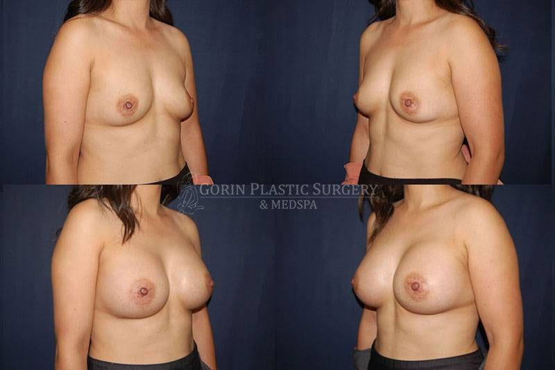 Breast augmentation before and after oblique view 68