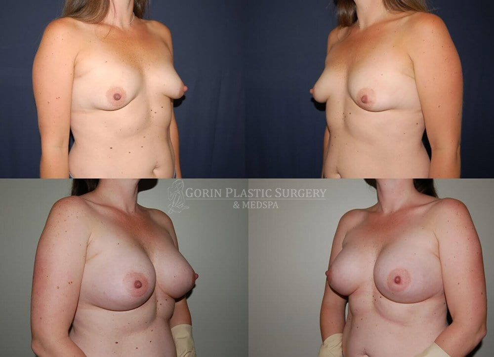 breast lift with augmentation before and after 24